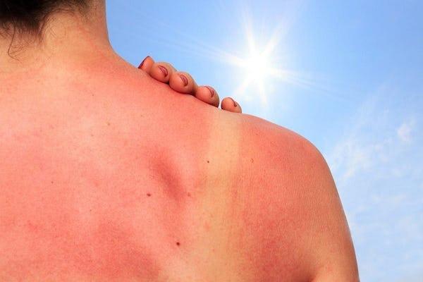 Bahaya Sinar Ultraviolet Bagi Kesehatan Tubuh Kita